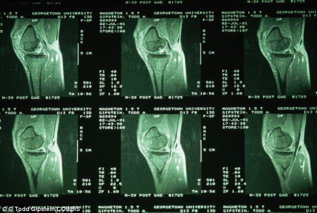 Détails d'un IRM de genou ; Vues de Profil